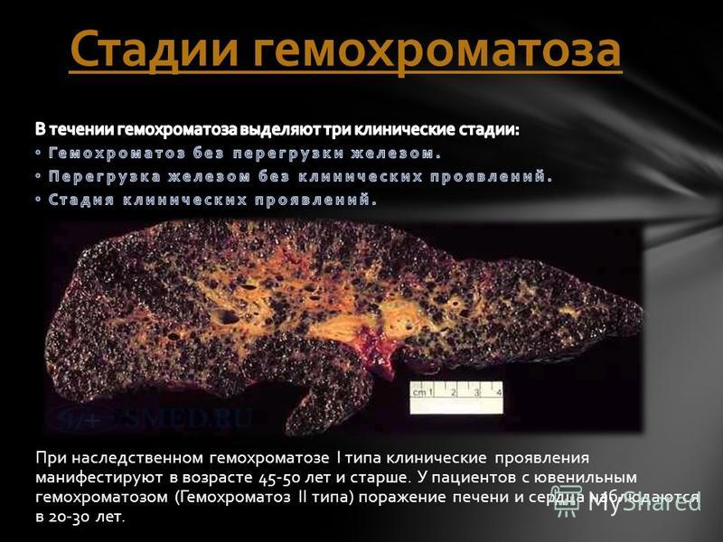 Стадии гемохроматоза