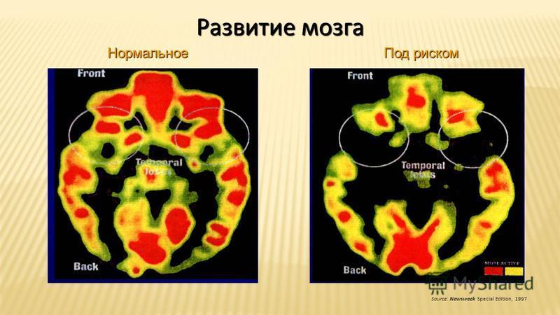Развитие мозга Source: Newsweek Special Edition, 1997 Нормальное Под риском