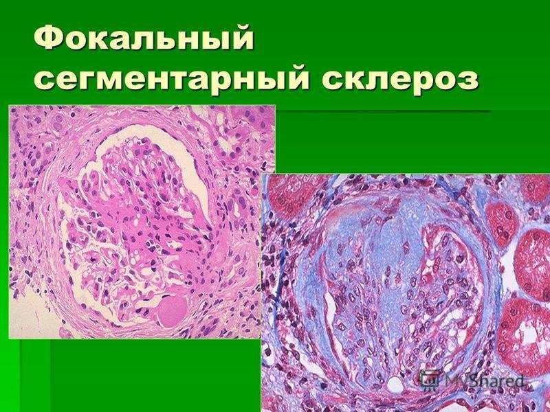 Фокальный сегментарный склероз
