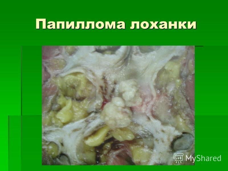 Папиллома лоханки