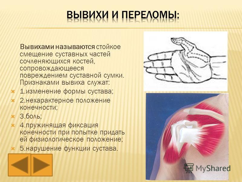Вывихами называются стойкое смещение суставных частей сочленяющихся костей, сопровождающееся повреждением суставной сумки. Признаками вывиха служат: 1. изменение формы сустава; 2. нехарактерное положение конечности; 3.боль; 4. пружинящая фиксация кон