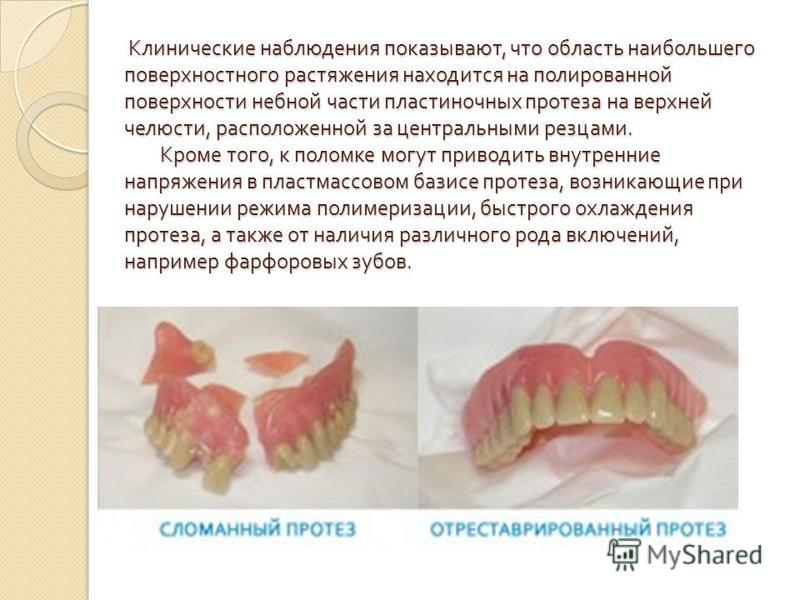 Клинические наблюдения показывают, что область наибольшего поверхностного растяжения находится на полированной поверхности небной части пластиночных протеза на верхней челюсти, расположенной за центральными резцами. Кроме того, к поломке могут привод