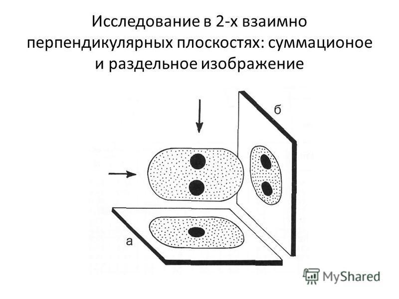 Исследование в 2-х взаимно перпендикулярных плоскостях: суммационное и раздельное изображение