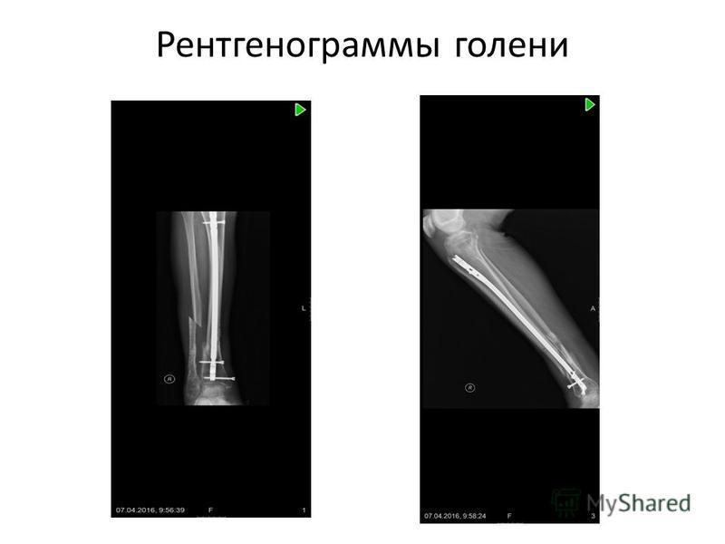 Рентгенограммы голени