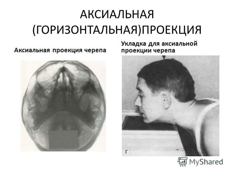 АКСИАЛЬНАЯ (ГОРИЗОНТАЛЬНАЯ)ПРОЕКЦИЯ Аксиальная проекция черепа Укладка для аксиальной проекции черепа