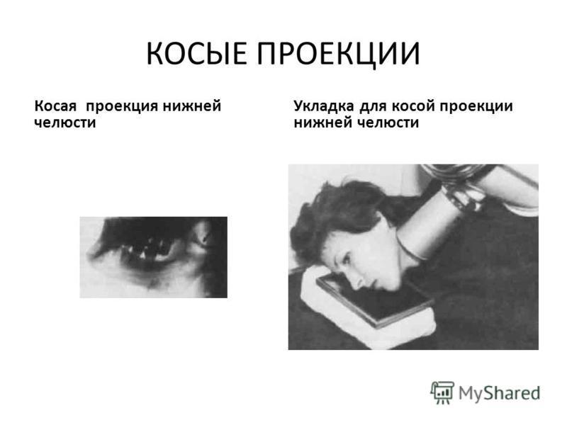 КОСЫЕ ПРОЕКЦИИ Косая проекция нижней челюсти Укладка для косой проекции нижней челюсти