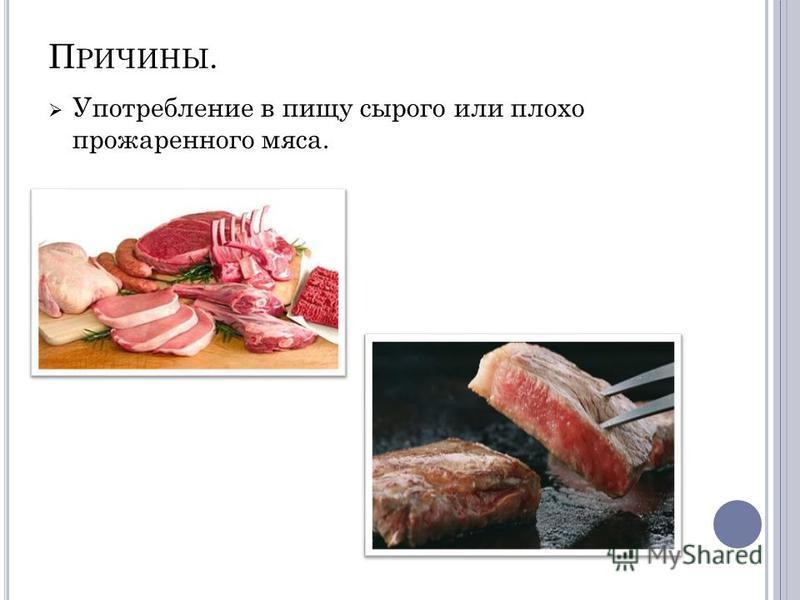 П РИЧИНЫ. Употребление в пищу сырого или плохо прожаренного мяса.