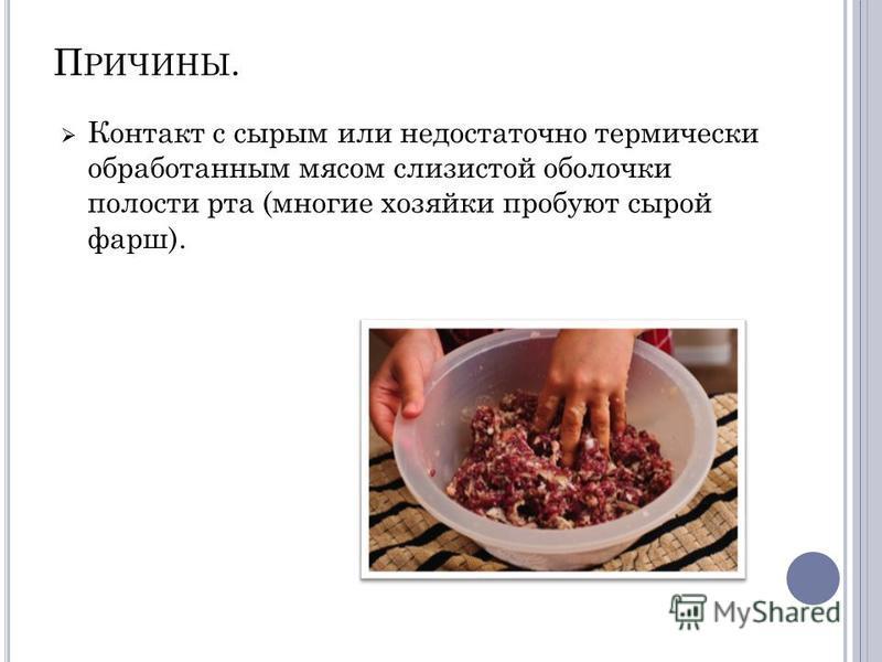 П РИЧИНЫ. Контакт с сырым или недостаточно термически обработанным мясом слизистой оболочки полости рта (многие хозяйки пробуют сырой фарш).