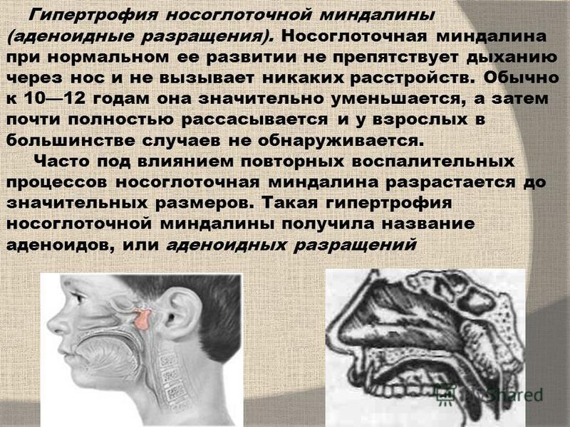 Гипертрофия носоглоточной миндалины (аденоидные разращения). Носоглоточная миндалина при нормальном ее развитии не препятствует дыханию через нос и не вызывает никаких расстройств. Обычно к 1012 годам она значительно уменьшается, а затем почти полнос