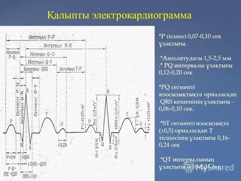 Қалыпты электрокардиограмма *P тісшесі 0,07-0,10 сек ұзақтығы. *Амплитудасы 1,5-2,5 мм.* РQ интервалы ұзақтығы 0,12-0,20 сек *РQ сегменті изосызықтықта орналасқан QRS кешенінің ұзақтығы – 0,06-0,10 сек. *ST сегменті изосызықта (±0,5) орналасқан Т тіс