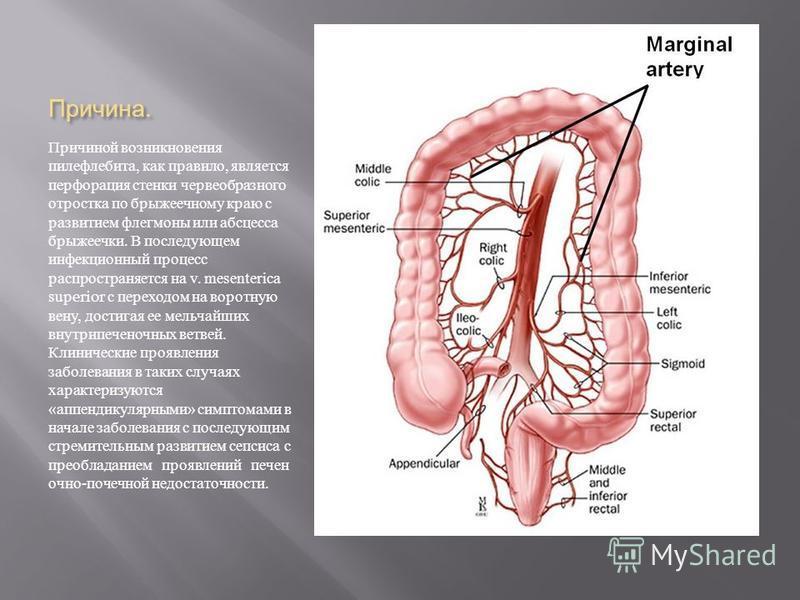 Причина. Причиной возникновения пилефлебита, как правило, является перфорация стенки червеобразного отростка по брыжеечному краю с развитием флегмоны или абсцесса брыжеечки. В последующем инфекционный процесс распространяется на v. mesenterica superi