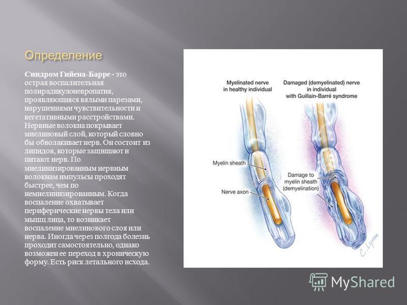 Определение Синдром Гийена - Барре - это острая воспалительная полирадикулоневропатия, проявляющаяся вялыми парезами, нарушениями чувствительности и вегетативными расстройствами. Нервные волокна покрывает миелиновый слой, который словно бы обволакива