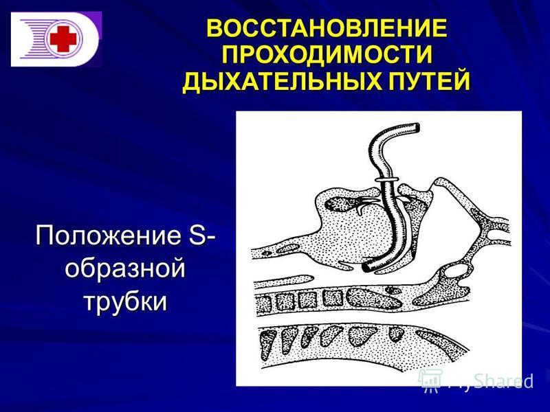 Положение S- образной трубки