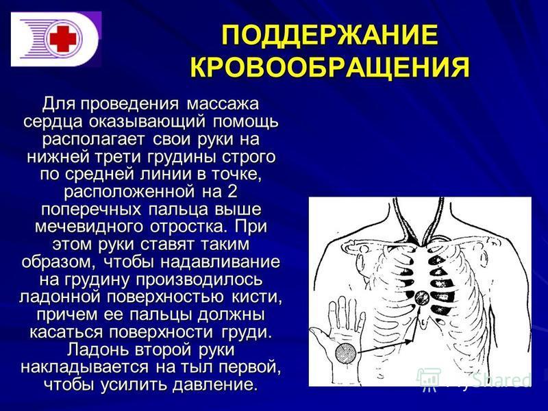 ПОДДЕРЖАНИЕ КРОВООБРАЩЕНИЯ Для проведения массажа сердца оказывающий помощь располагает свои руки на нижней трети грудины строго по средней линии в точке, расположенной на 2 поперечных пальца выше мечевидного отростка. При этом руки ставят таким обра