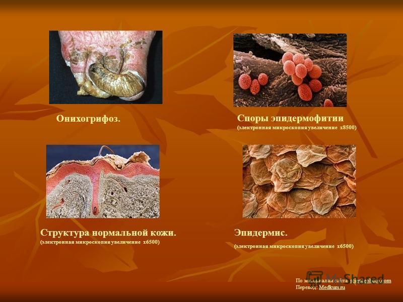 Онихогрифоз. Споры эпидермофитии (электронная микроскопия увеличение х 8500) Структура нормальной кожи. (электронная микроскопия увеличение х 6500) Эпидермис. (электронная микроскопия увеличение х 6500) По материалам сайта sciencephoto.com Перевод: M