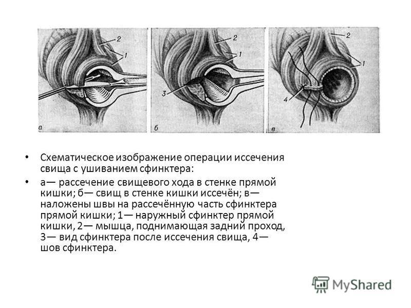 Схематическое изображение операции иссечения свища с ушиванием сфинктера: а рассечение свищевого хода в стенке прямой кишки; б свищ в стенке кишки иссечён; в наложены швы на рассечённую часть сфинктера прямой кишки; 1 наружный сфинктер прямой кишки,