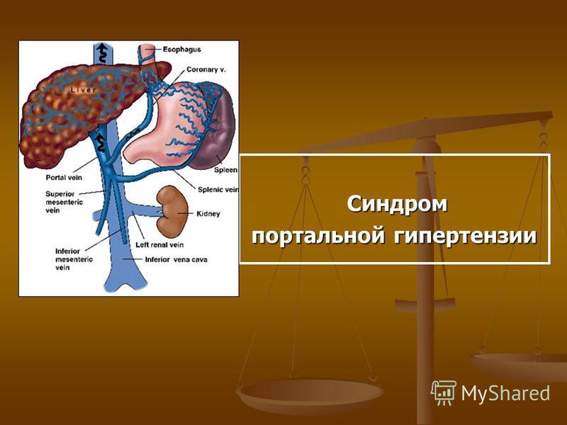 Синдром Синдром портальной гипертензии