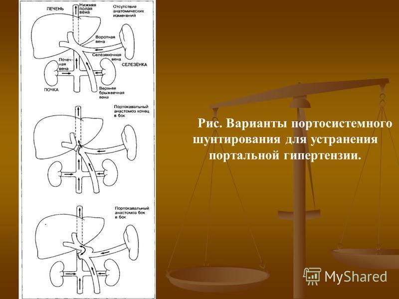 Рис. Варианты портосистемного шунтирования для устранения портальной гипертензии.