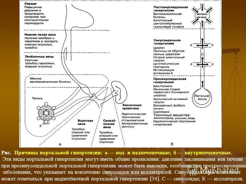Рис. Причины портальной гипертензии: а под- и надпеченочные; б внутрипеченочные. Эти виды портальной гипертензии могут иметь общие проявления: давление заклинивания вен печени при пресинусоидальной портальной гипертензии может быть высоким, особенно