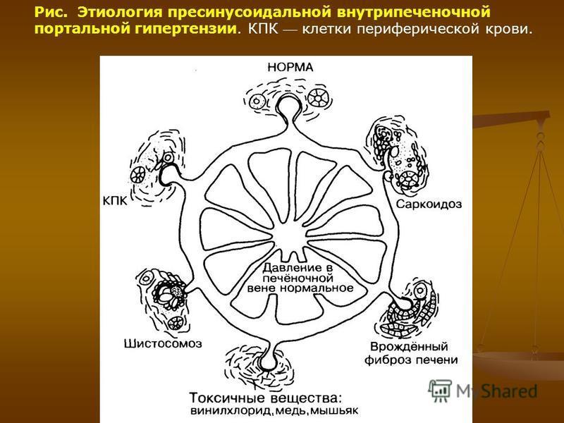 Рис. Этиология пресинусоидальной внутрипеченочной портальной гипертензии. КПК клетки периферической крови.