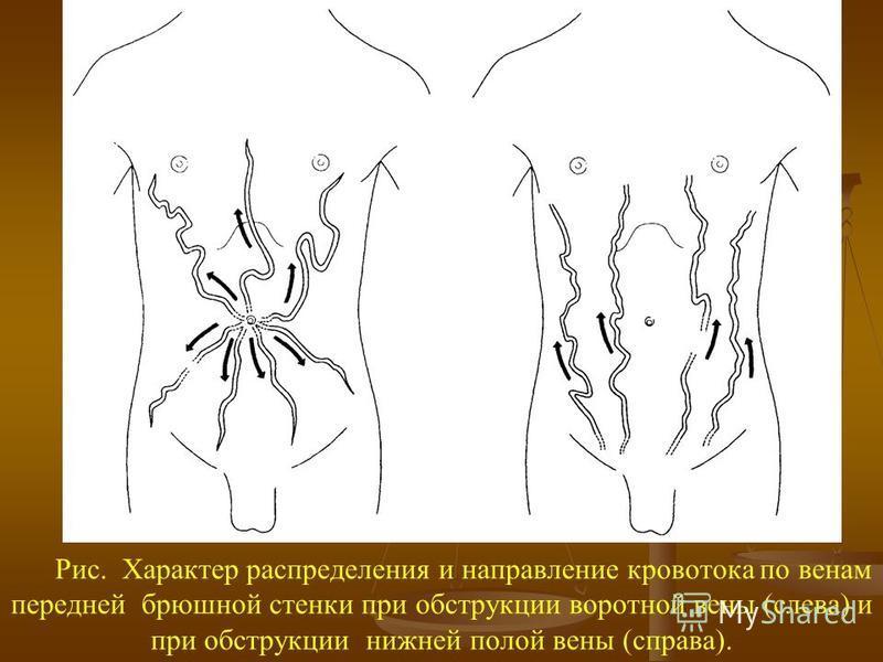 Рис. Характер распределения и направление кровотока по венам передней брюшной стенки при обструкции воротной вены (слева) и при обструкции нижней полой вены (справа).