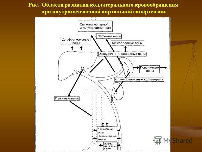 Рис. Области развития коллатерального кровообращения при внутрипеченочной портальной гипертензии.