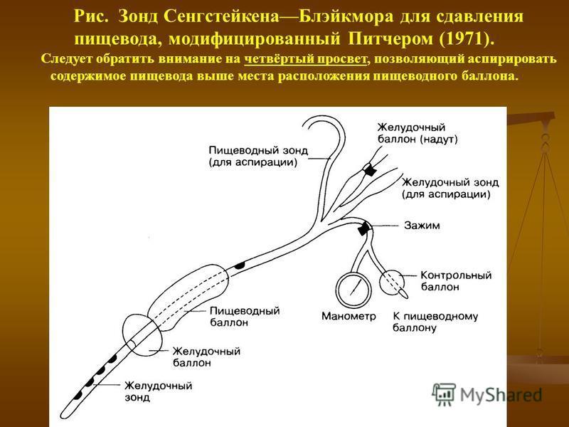 Рис. Зонд Сенгстейкена Блэйкмора для сдавления пищевода, модифицированный Питчером (1971). Следует обратить внимание на четвёртый просвет, позволяющий аспирировать содержимое пищевода выше места расположения пищеводного баллона.