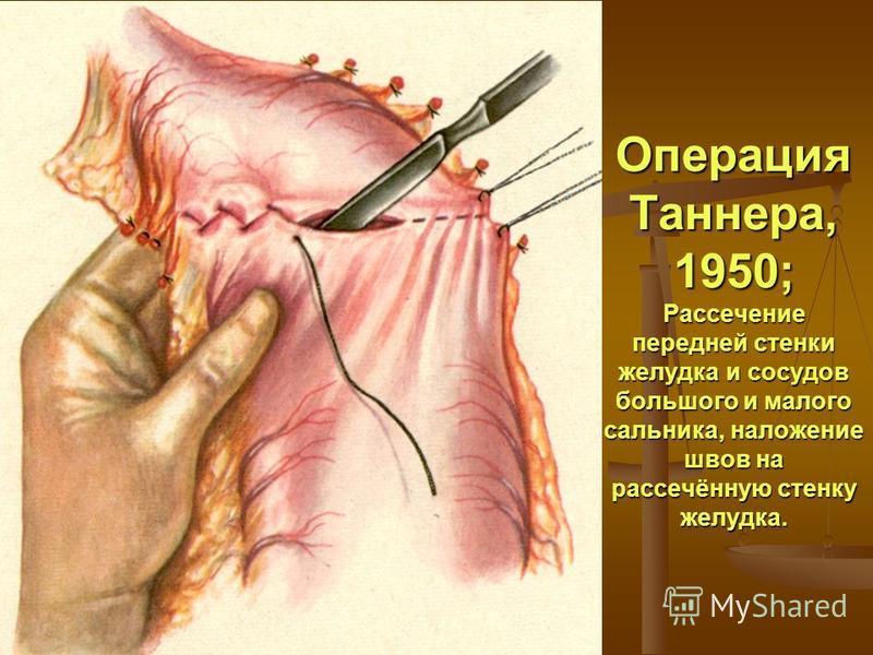 Операция Таннера, 1950; Рассечение передней стенки желудка и сосудов большого и малого сальника, наложение швов на рассечённую стенку желудка.