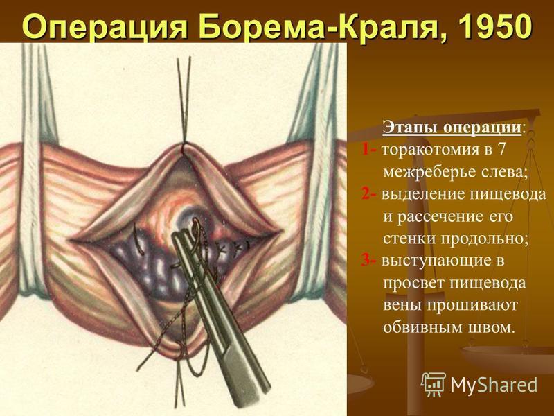 Операция Борема-Краля, 1950 Этапы операции: 1- торакотомия в 7 межреберье слева; 2- выделение пищевода и рассечение его стенки продольно; 3- выступающие в просвет пищевода вены прошивают обвивным швом.