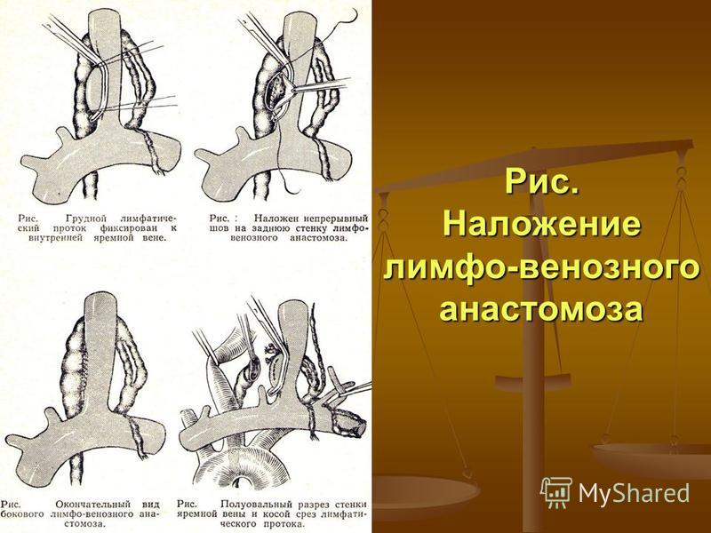 Рис. Наложение лимфо-венозного анастомоза