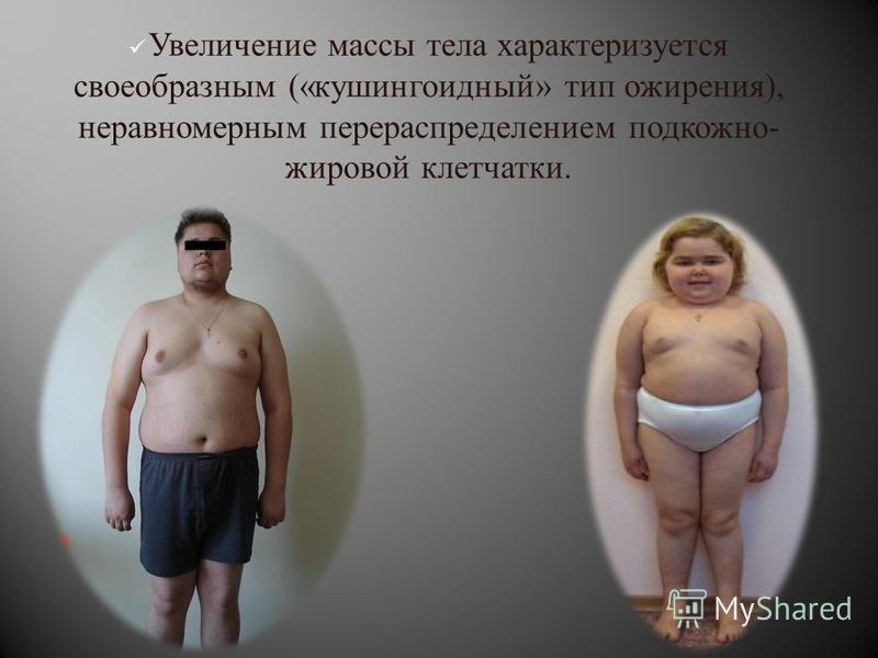 Увеличение массы тела характеризуется своеобразным (« кушингоидный » тип ожирения ), неравномерным перераспределением подкожно - жировой клетчатки.