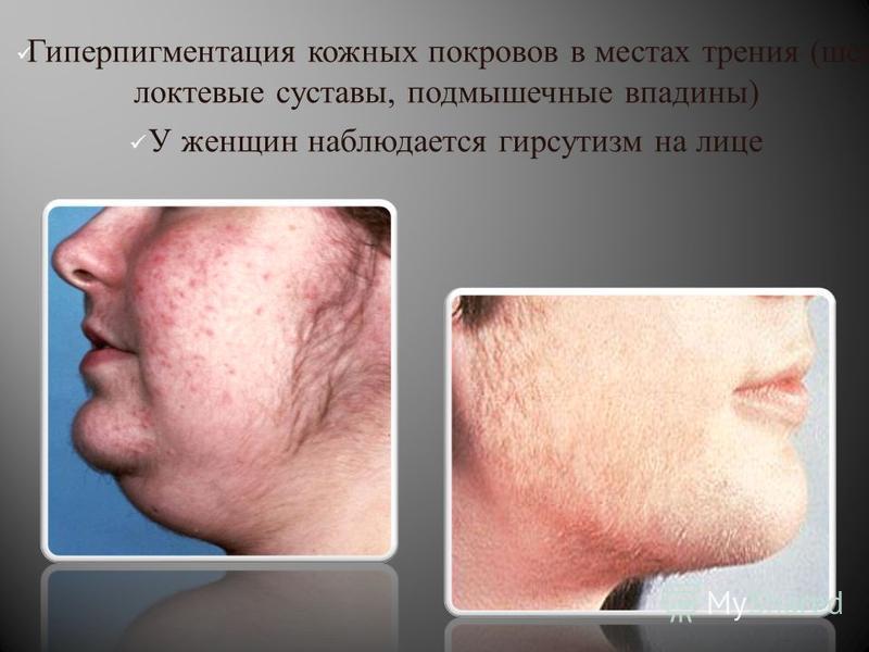 Гиперпигментация кожных покровов в местах трения ( шея локтевые суставы, подмышечные впадины ) У женщин наблюдается гирсутизм на лице