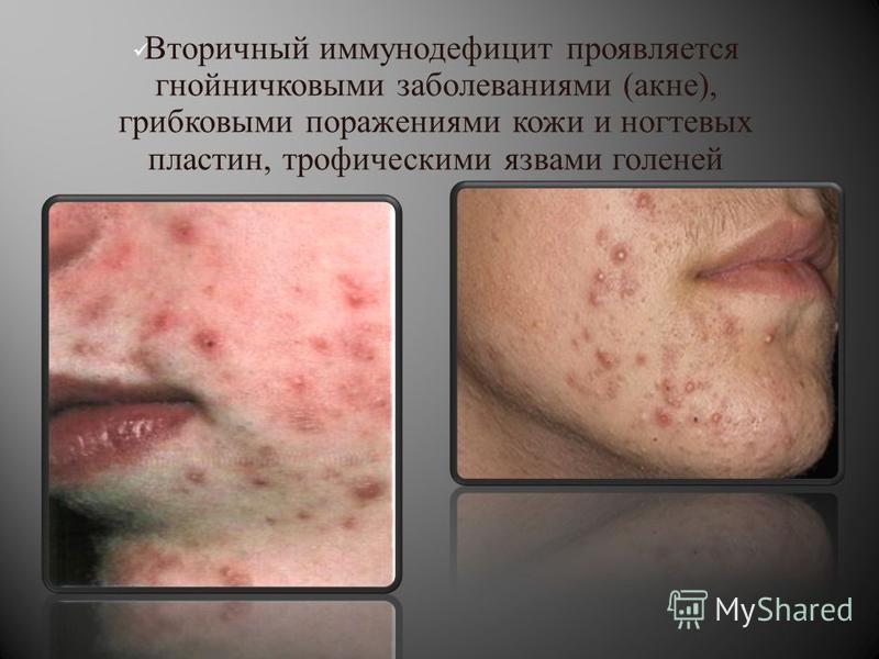 Вторичный иммунодефицит проявляется гнойничковыми заболеваниями ( акне ), грибковыми поражениями кожи и ногтевых пластин, трофическими язвами голеней