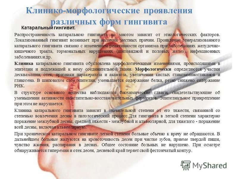 Клинико-морфологические проявления различных форм гингивита Катаральный гингивит. Распространенность катаральною гингивита во многом зависит от этиологических факторов. Локализованный гингивит возникает при наличии местных причин. Проявление генерали