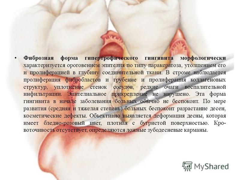 Фиброзная форма гипертрофического гингивита морфологически характеризуется ороговением эпителия по типу паракератоза, утолщением его и пролиферацией в глубину соединительной ткани. В строме наблюдается пролиферация фибробластов и грубение и пролифе