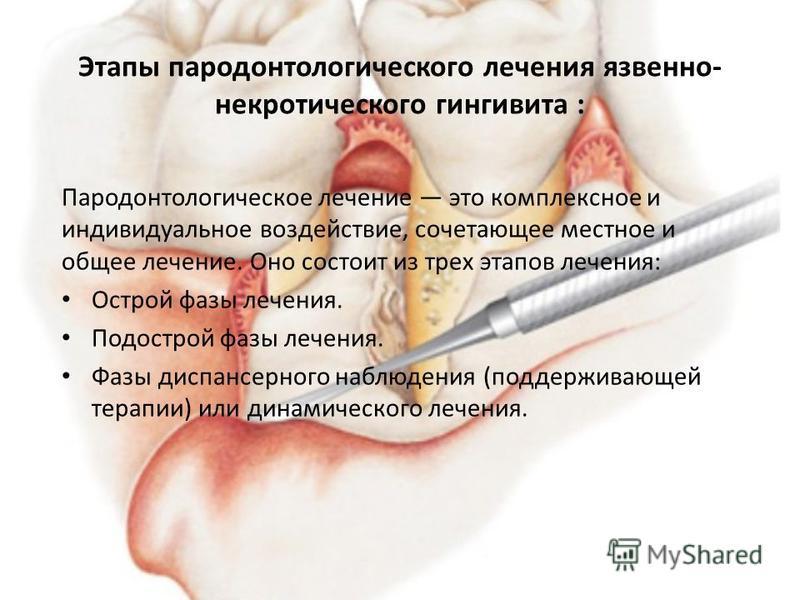 Этапы пародонтологического лечения язвенно- некротического гингивита : Пародонтологическое лечение это комплексное и индивидуальное воздействие, сочетающее местное и общее лечение. Оно состоит из трех этапов лечения: Острой фазы лечения. Подострой фа