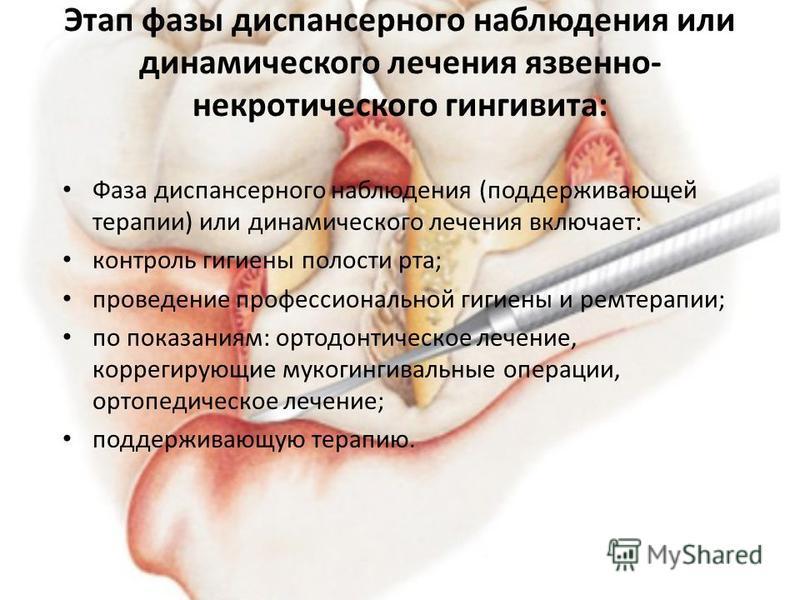 Этап фазы диспансерного наблюдения или динамического лечения язвенно- некротического гингивита: Фаза диспансерного наблюдения (поддерживающей терапии) или динамического лечения включает: контроль гигиены полости рта; проведение профессиональной гигие