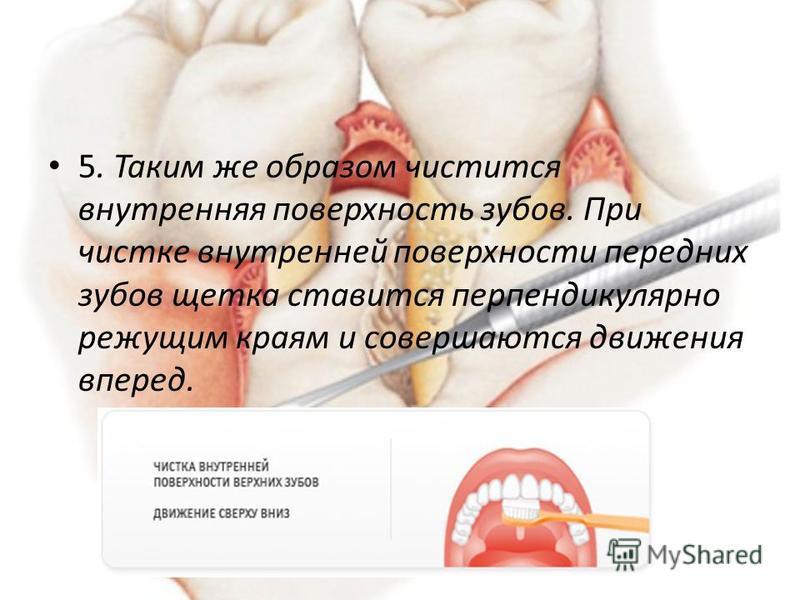 5. Таким же образом чистится внутренняя поверхность зубов. При чистке внутренней поверхности передних зубов щетка ставится перпендикулярно режущим краям и совершаются движения вперед.