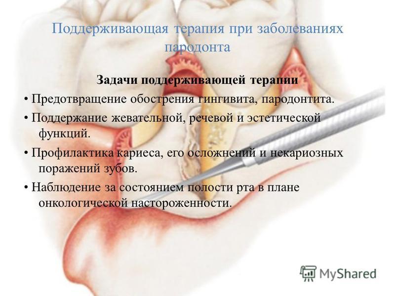 Поддерживающая терапия при заболеваниях пародонта Задачи поддерживающей терапии Предотвращение обострения гингивита, пародонтита. Поддержание жевательной, речевой и эстетической функций. Профилактика кариеса, его осложнений и некариозных поражений зу