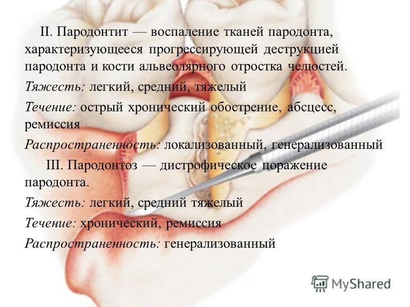 II. Пародонтит воспаление тканей пародонта, характеризующееся прогрессирующей деструкцией пародонта и кости альвеолярного отростка челюстей. Тяжесть: легкий, средний, тяжелый Течение: острый хронический обострение, абсцесс, ремиссия Распространенност