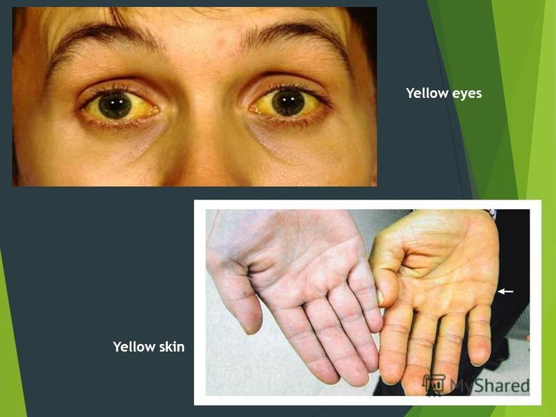 Yellow skin Yellow eyes