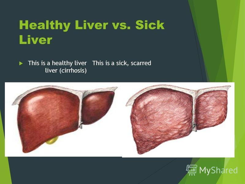 Healthy Liver vs. Sick Liver This is a healthy liverThis is a sick, scarred liver (cirrhosis)
