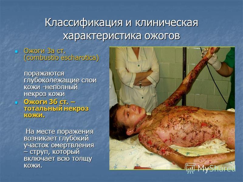 Классификация и клиническая характеристика ожогов Ожоги 3 а ст. (combustio escharotica) Ожоги 3 а ст. (combustio escharotica) поражаются глубоколежащие слои кожи -неполный некроз кожи поражаются глубоколежащие слои кожи -неполный некроз кожи Ожоги 3