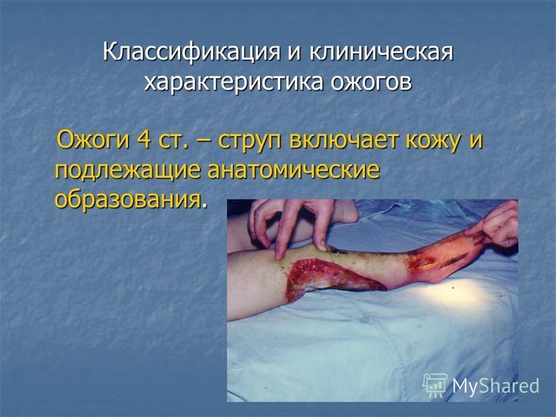 Классификация и клиническая характеристика ожогов Ожоги 4 ст. – струп включает кожу и подлежащие анатомические образования. Ожоги 4 ст. – струп включает кожу и подлежащие анатомические образования.