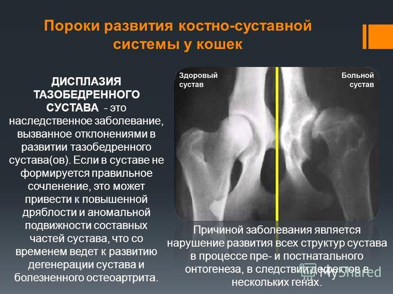 Пороки развития костно-суставной системы у кошек ДИСПЛАЗИЯ ТАЗОБЕДРЕННОГО СУСТАВА - это наследственное заболевание, вызванное отклонениями в развитии тазобедренного сустава(ов). Если в суставе не формируется правильное сочленение, это может привести