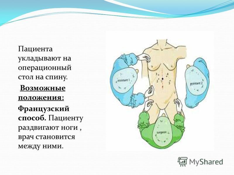 Пациента укладывают на операционный стол на спину. Возможные положения: Французский способ. Пациенту раздвигают ноги, врач становится между ними.