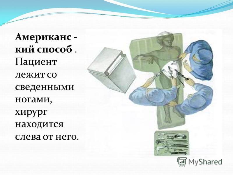 Американс - кий способ. Пациент лежит со сведенными ногами, хирург находится слева от него.