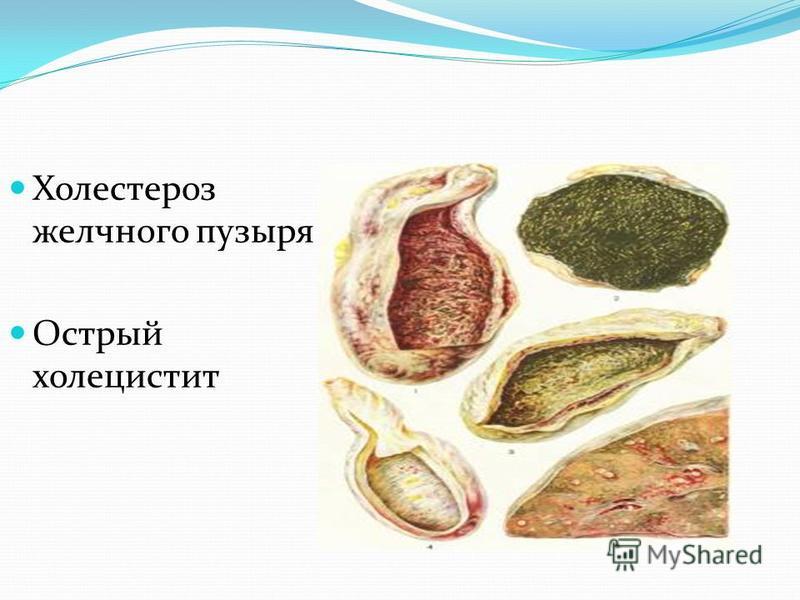 Холестероз желчного пузыря Острый холецистит