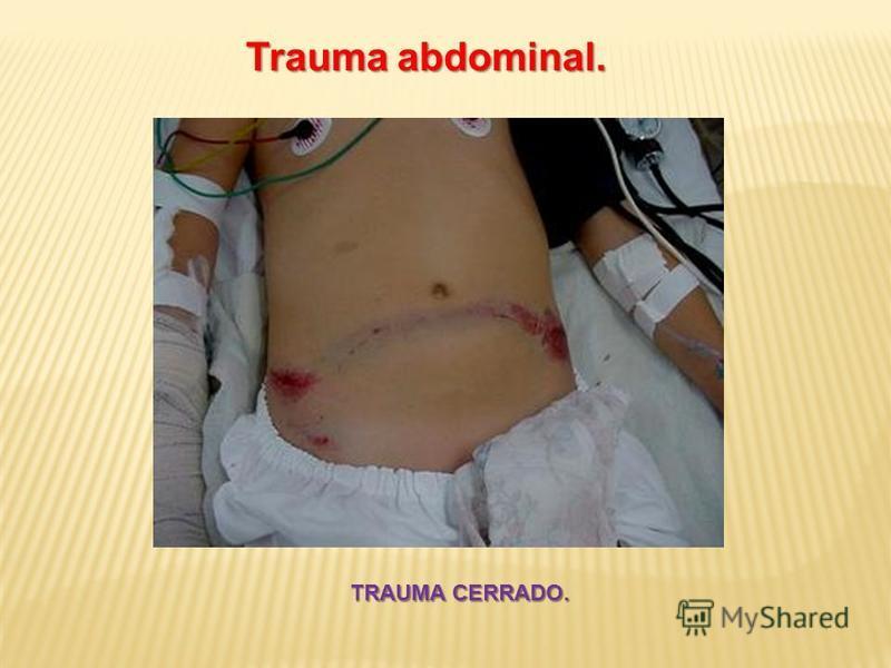 Trauma abdominal. TRAUMA CERRADO.
