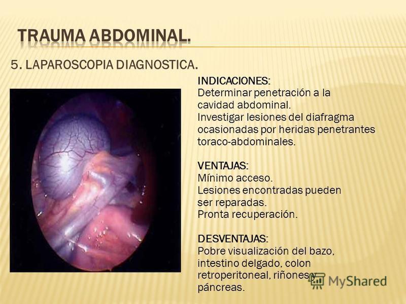 5. LAPAROSCOPIA DIAGNOSTICA. INDICACIONES: Determinar penetración a la cavidad abdominal. Investigar lesiones del diafragma ocasionadas por heridas penetrantes toraco-abdominales. VENTAJAS: Mínimo acceso. Lesiones encontradas pueden ser reparadas. Pr